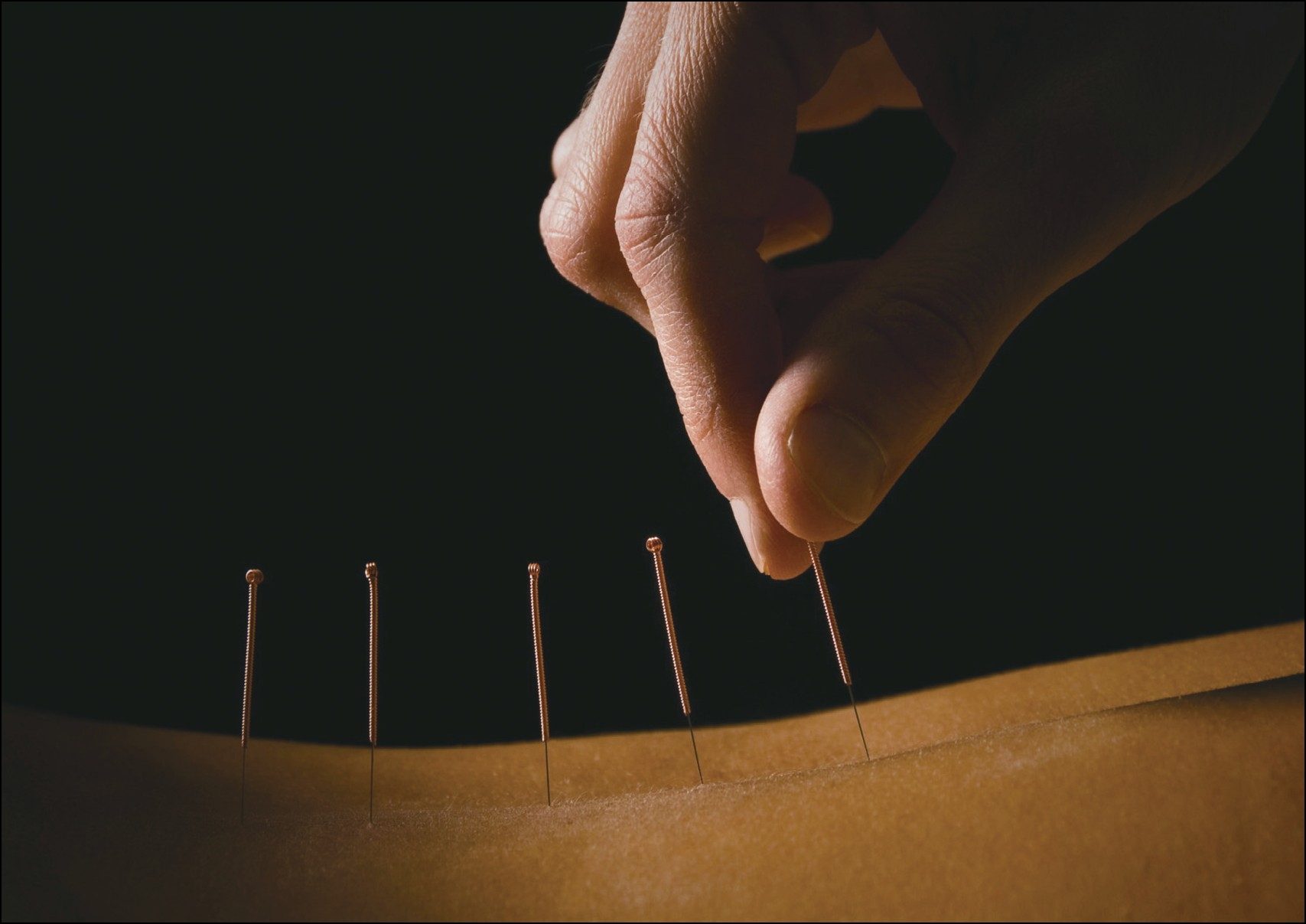acupuncture TCM